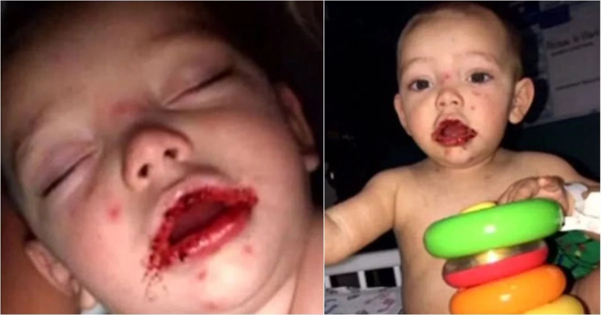 Kiss of death! Mom shares heartbreaking photos of her baby son who contracted herpes from a stranger