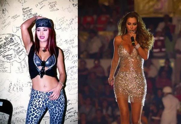 Top 5 famosas que se han hecho cirugías plásticas
