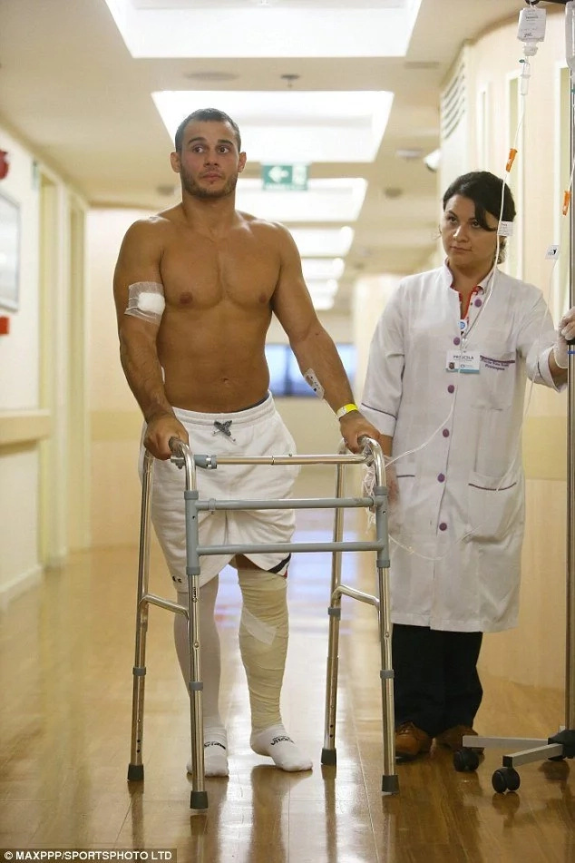 Olympic gymnast double breaks his leg but managed to walk