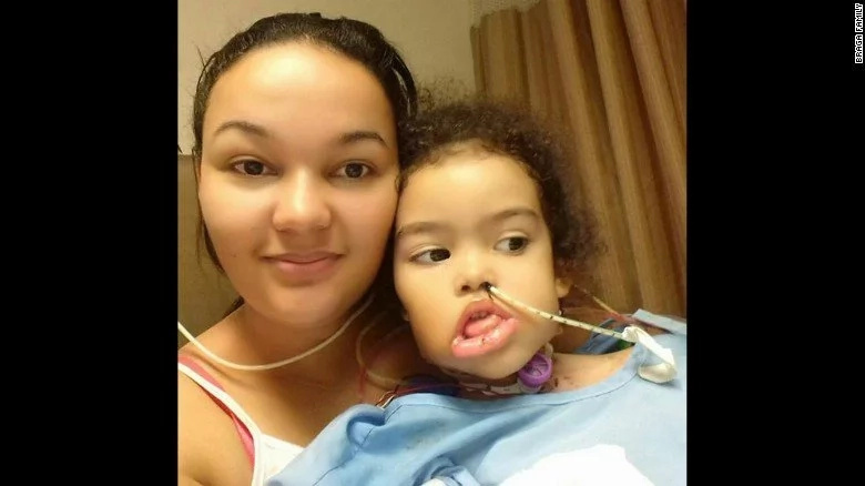 See girl's new face after her jaw was eaten away by a tumour the size of WATERMELON (photos)