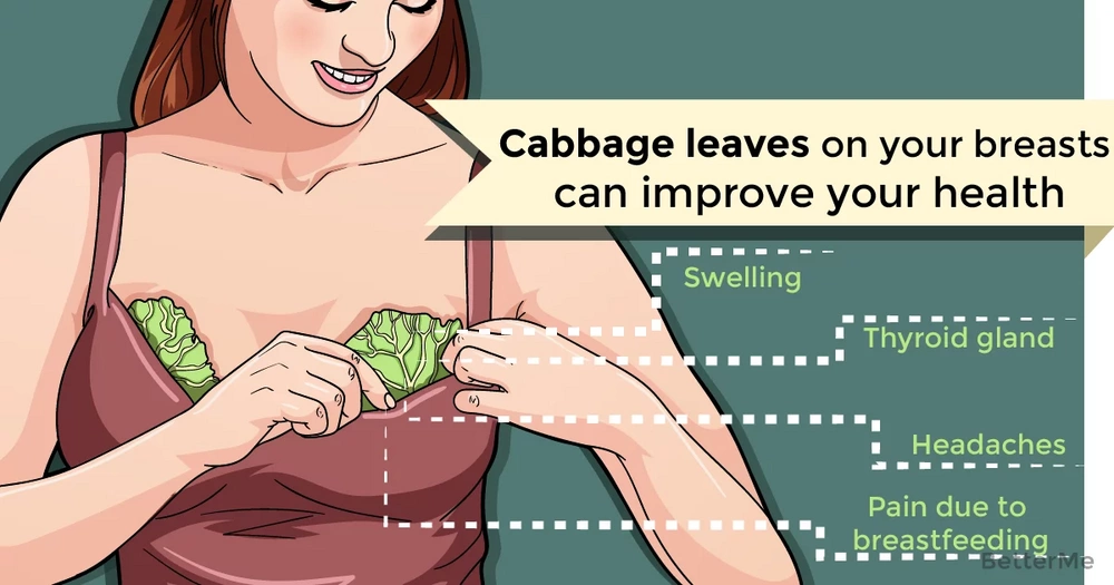 Putting cabbage leaves on your breasts can improve your health