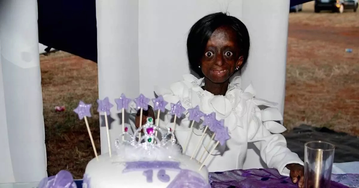 Hundreds attend memorial of first black progeria girl who died soon after celebrating 18th birthday with president
