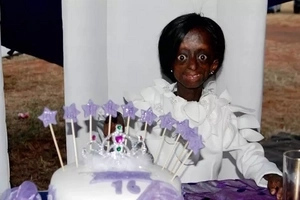 Hundreds mourn first black progeria girl who DIED weeks after celebrating 18th birthday with president