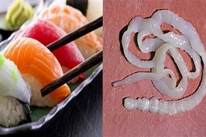 You will never eat sushi again after hearing this poor sushi lover's experience!