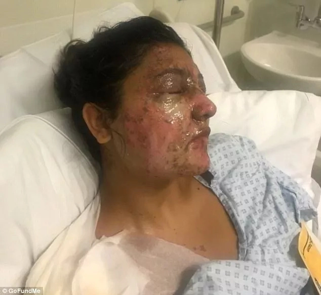 This man and his cousin were hospitalized. The reason was an acid attack from a hateful man!