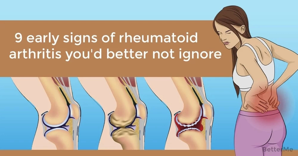 9 early signs of rheumatoid arthritis you'd better not ignore