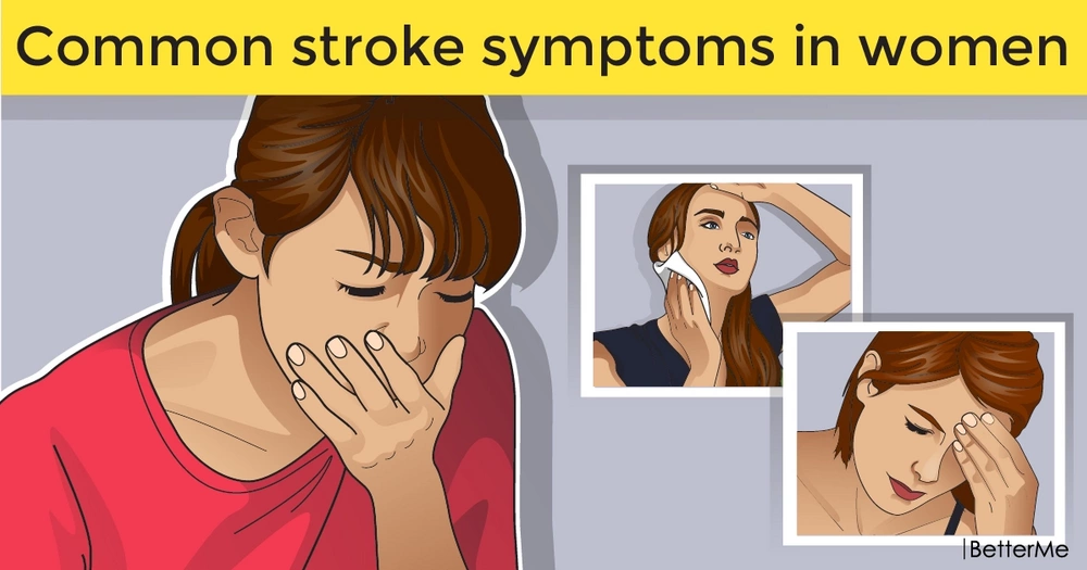 Common stroke symptoms in women: how to self-diagnose a stroke and when to call for help