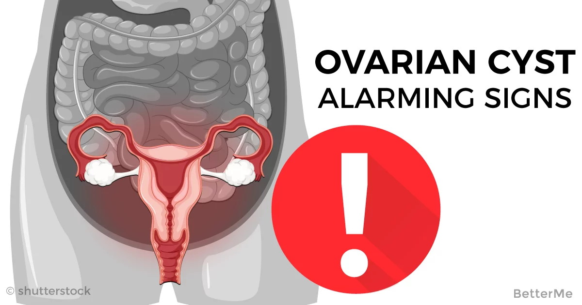 How Can I Feel If I Have Ovarian Cyst See Alarming Signs Here-3903