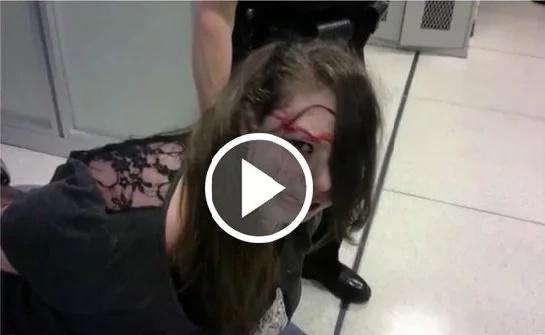 Golpearon a joven discapacitada con cáncer hasta dejarla llena de sangre