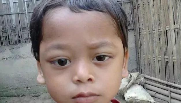Los ojos de este niño sangran y se salen de su órbita