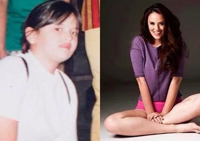 Check this out: List of celebrities with shocking transformation