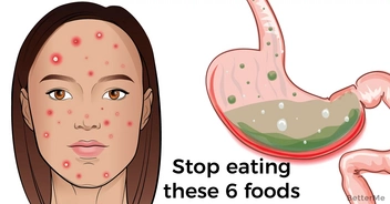 Stop eating these 6 foods. They can negatively affect your hormonal balance
