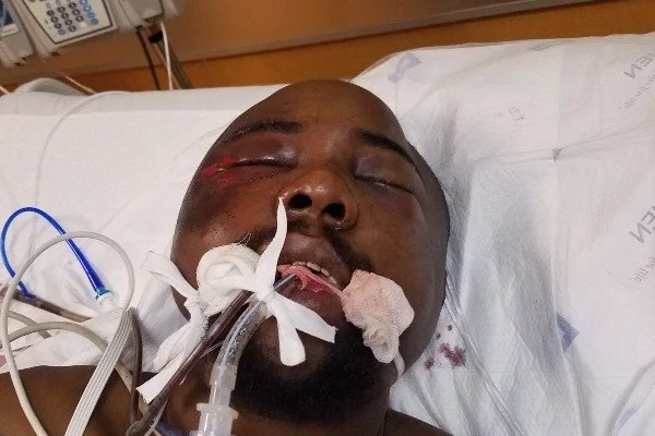 38-year-old Kenyan man attacked in the US