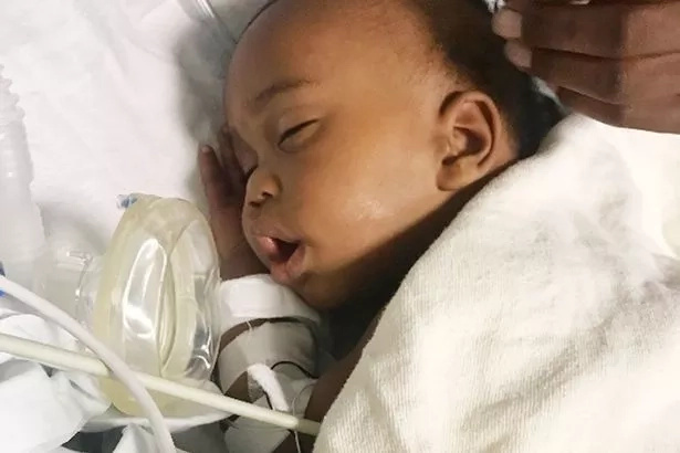 Marvel child survives getting shot twice as he lay in pram