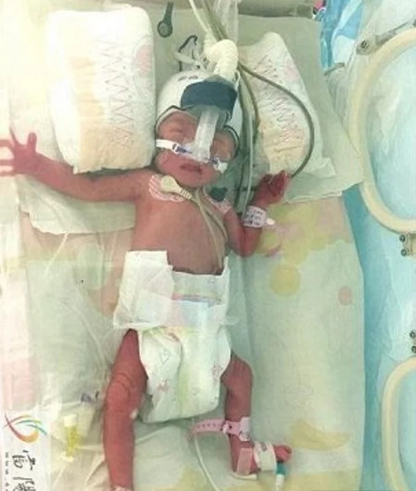 Woman gives birth to THREE babies along SEVEN DAYS