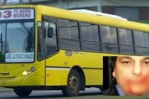 Chofer de bus sufrió brutal ataque: le cortaron la cara con un machete