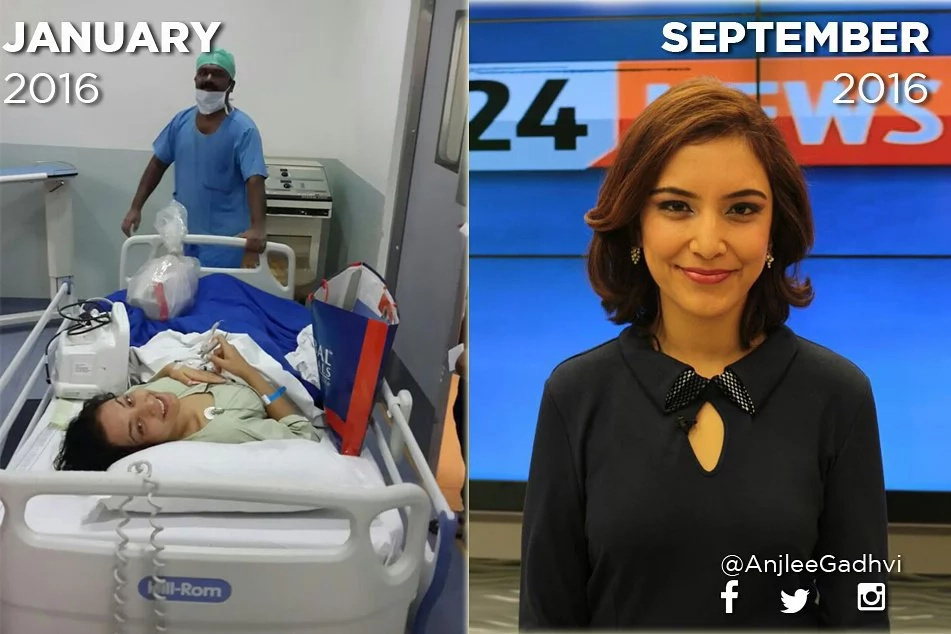 K24 anchor Anjilee Gadhvi now healed of liver cancer