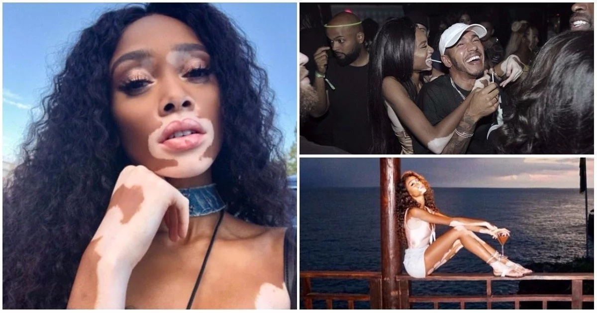 """I'm beautiful because I know it"" - Model with vitiligo shares photos of herself to inspire body positivity"