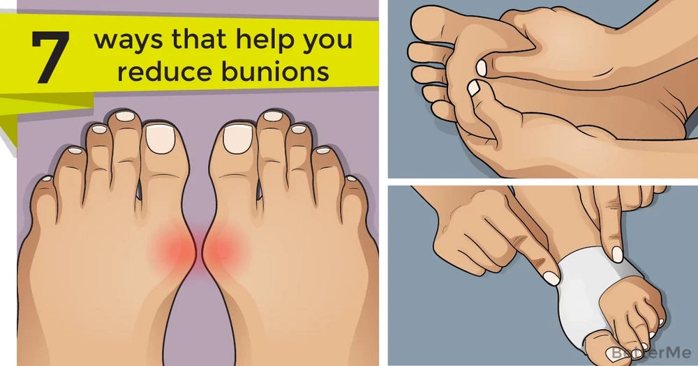 7 ways that can help you reduce bunions at home