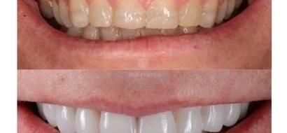 Este nuevo método para regenerar tus tiendes acabará con las torturas en el dentista