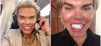 Plastic surgery addict wakes up with broken fake teeth after night out with several women
