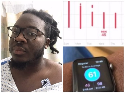 Life-saving watch! Man, 28, claims Apple watch saved his life by spotting blood clot in his lung
