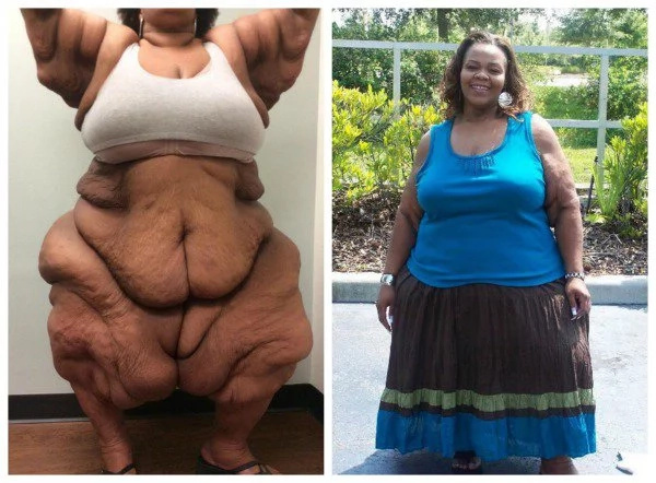 Central Kenya leads in the number of fat women