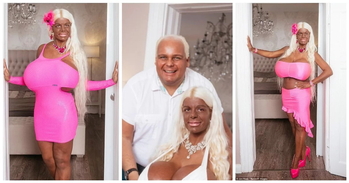 """Woman spends a fortune to boost her assets to size 32S, tans her skin to become """"exotic Barbie"""" (photos)"""