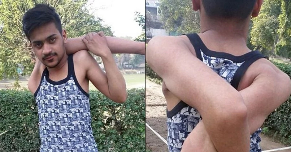 Boy with SNAKE arms is shocking people worldwide (photos, video)