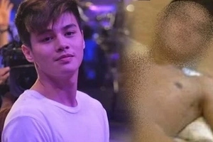 Controversial Ronnie Alonte speaks up about his photo and video scandal