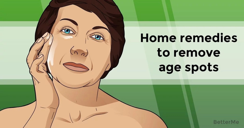 Home remedies to remove age spots