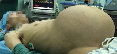 Another 'Pregnant Man' gives birth