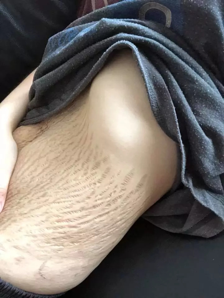 Doreen shared this photo of her stretch marks on Facebook. Source: Facebook/Doreen Ching