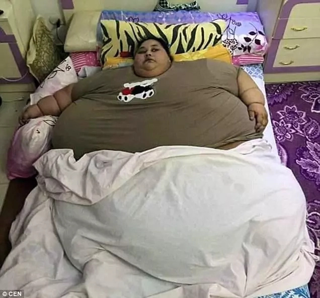 Doctors said her weight was caused by a thyroid condition. Photo: CEN