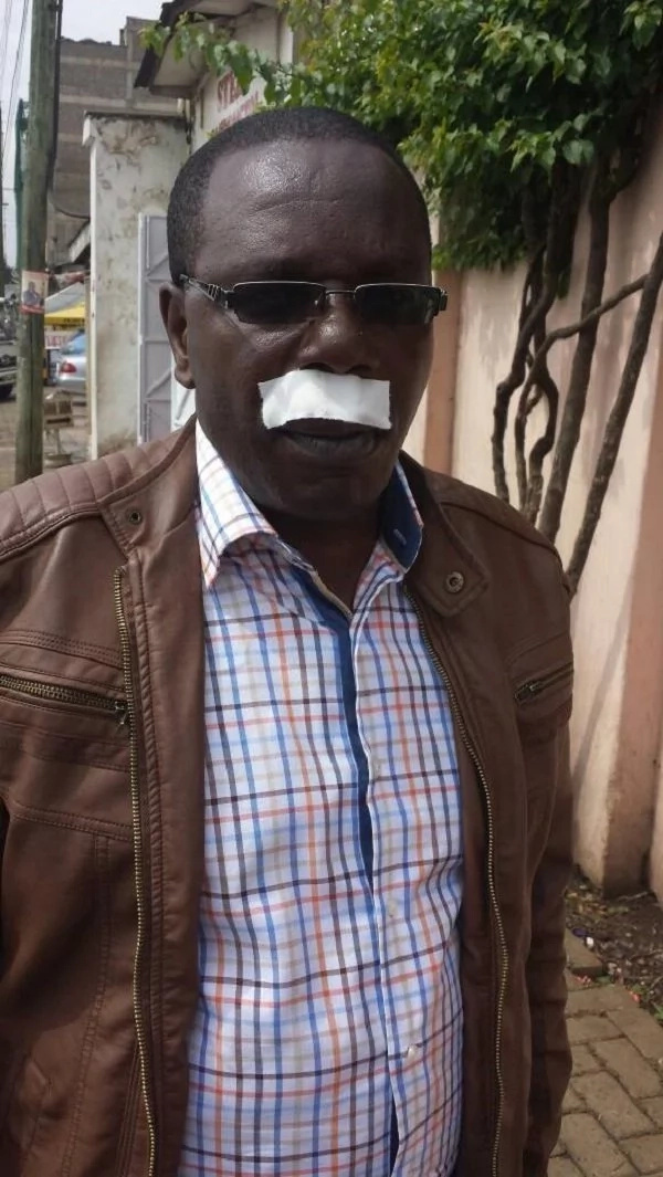 Jubilee politician attacked by goons, clobbered, robbed and left for the dead