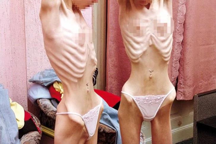 ¡Cuidado con la anorexia! Impresionantes imágenes