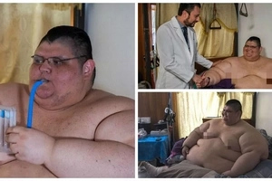World's heaviest man! 595kg man who spent 6 YEARS confined to bed to undergo life-changing surgery (photos, video)