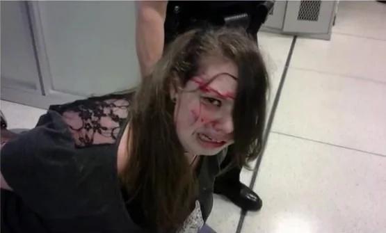 Golpearon a joven con cáncer hasta dejarla llena de sangre