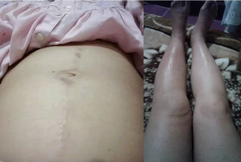 OFW in Kuwait calls help after being abused by employer