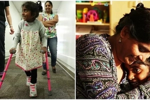 Girl, 5, who has celebral palsy walks for the FIRST time after groundbreaking spinal surgery (photos, video)