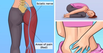 8 best natural treatments for sciatic pain