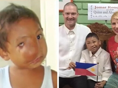Pinoy orphan gets new name, new face, and new life in America