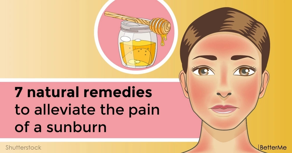 7 natural remedies to alleviate the pain of a sunburn