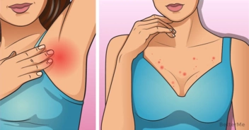 5 things could happen to you if you don't wash your bra regularly