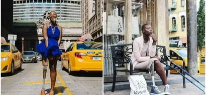 Inspiring! Woman who was given 3 WEEKS to live and had leg amputated survives to share positivity (photos)