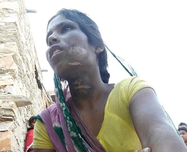 Husband burns wife, 22, with HOT TONGS after she received call from unknown number (photos)