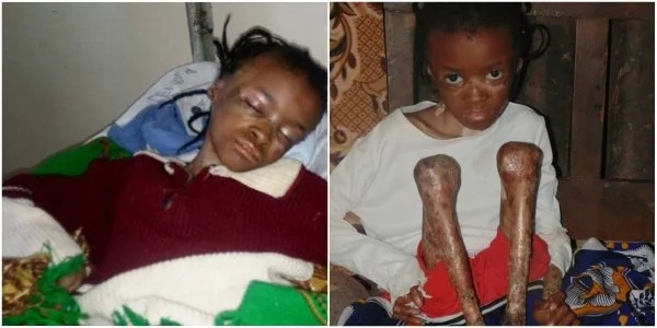 Miracle as Eunice Wanjiku celebrates 10th birthday looking healthy and stronger