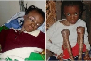 Great news for Kenyans who helped this 10-year-old girl suffering from TERRIBLE skin disease