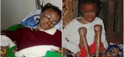 UPDATE: Good news as Eunice Wanjiku,the girl with a rare and painful skin disease begins recovery
