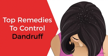 Home remedies that are useful in treating dandruff